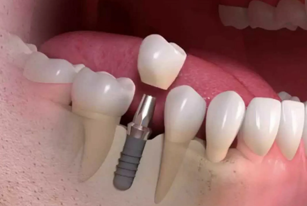 Рентген поможет увидеть потеряли вы зуб полностью или нет.