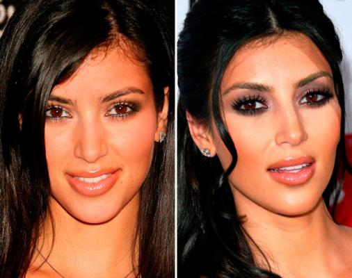 Звезды, которые сделали пластические операции и стали выглядеть лучше
